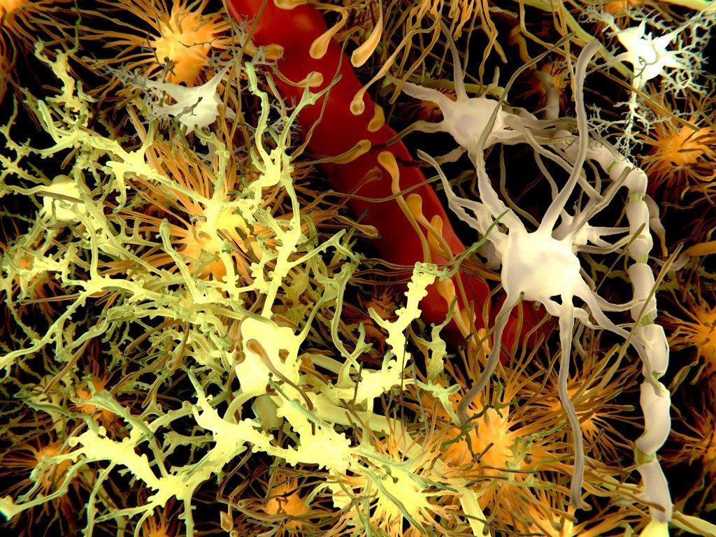 Forscher: Können Alzheimer-Erkrankungen auch auf Andere übertragen werden?