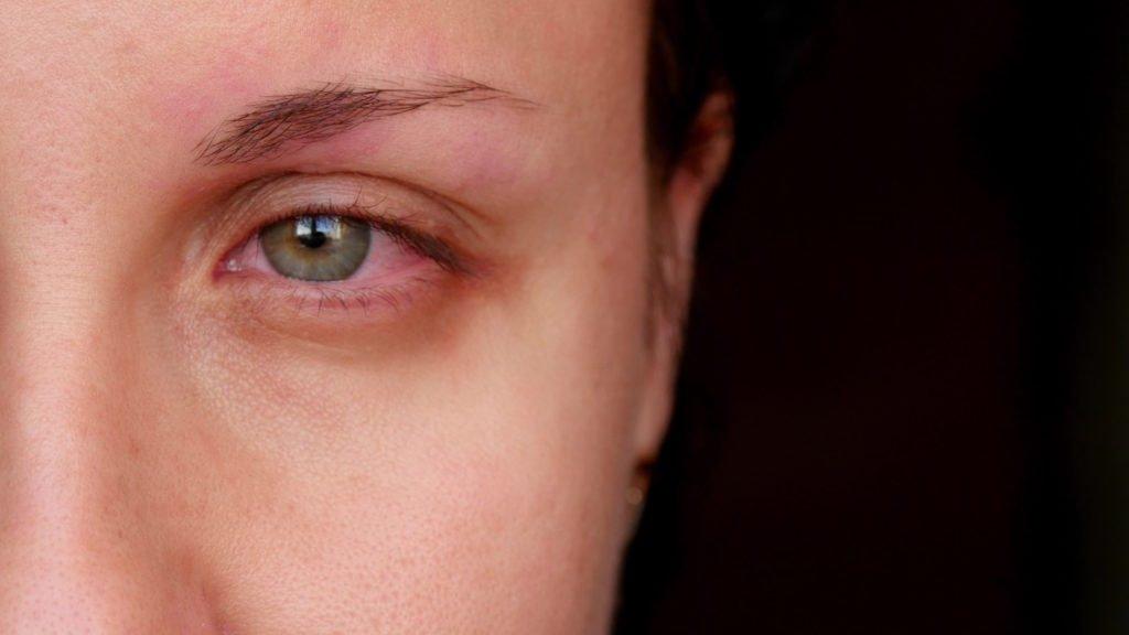 Netzhautentzündung – Symptome, Ursachen und Behandlung