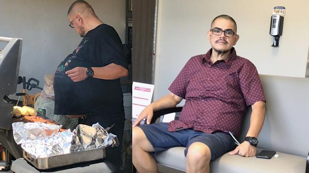 """Hectors Freunde lachen über seinen """"Bierbauch"""" – bis die Schock-Diagnose kommt"""