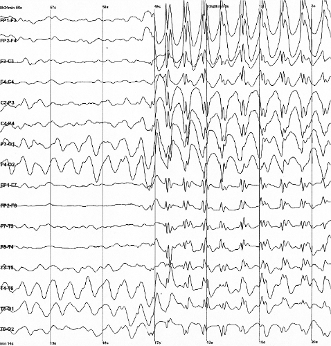 Genetische Untersuchung von Epilepsie verweist auf mögliche neue Therapien