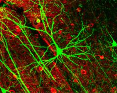 Das hinzufügen neuer Kanäle zum Gehirn Fernbedienung
