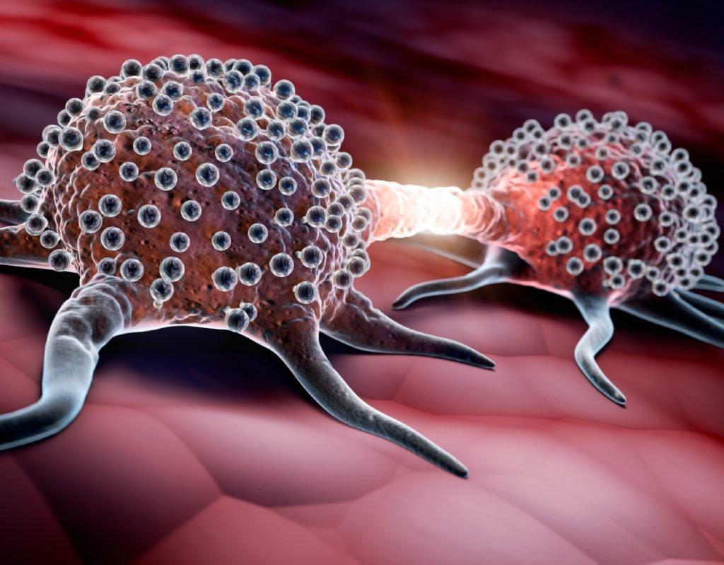 Krebs: Ein neu entdeckter Wirkstoff verhindert die Bildung von Metastasen