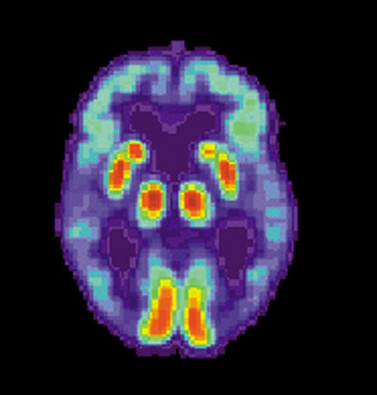 Neue Zelle Modell der häufigsten form der Alzheimer-Punkte zu molekularen Ursachen, drug-target