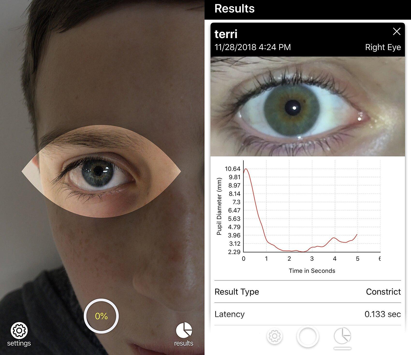 Brightlamp startet smartphone-app können schnell monitor das Gehirn auf Anzeichen von Gehirnerschütterung