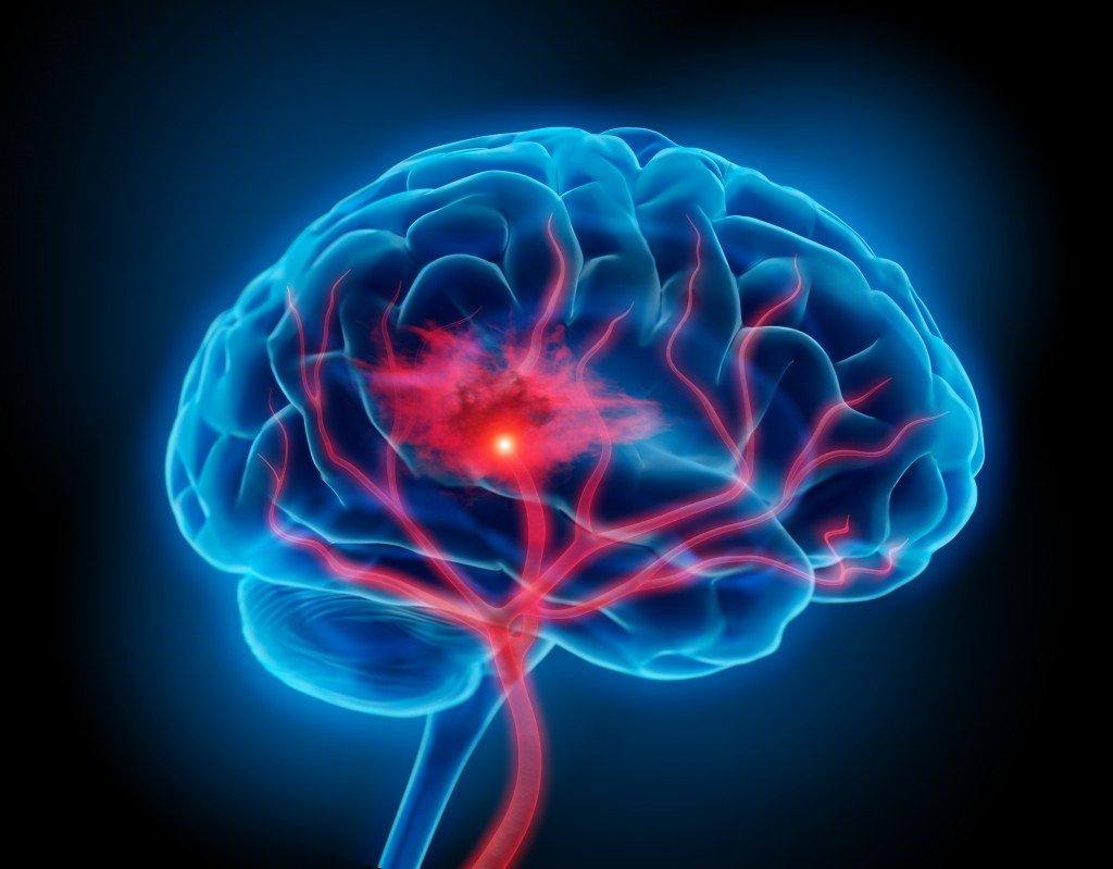 Bluthochdruck und Rauchen erhöhen das Risiko für eine Hirnblutung erheblich
