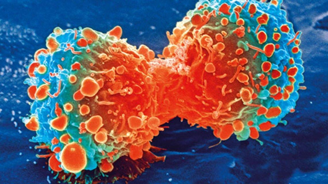 Thermische stress ausgelösten Genom-Veränderungen, die Krebszellen resistent gegen eine Chemotherapie