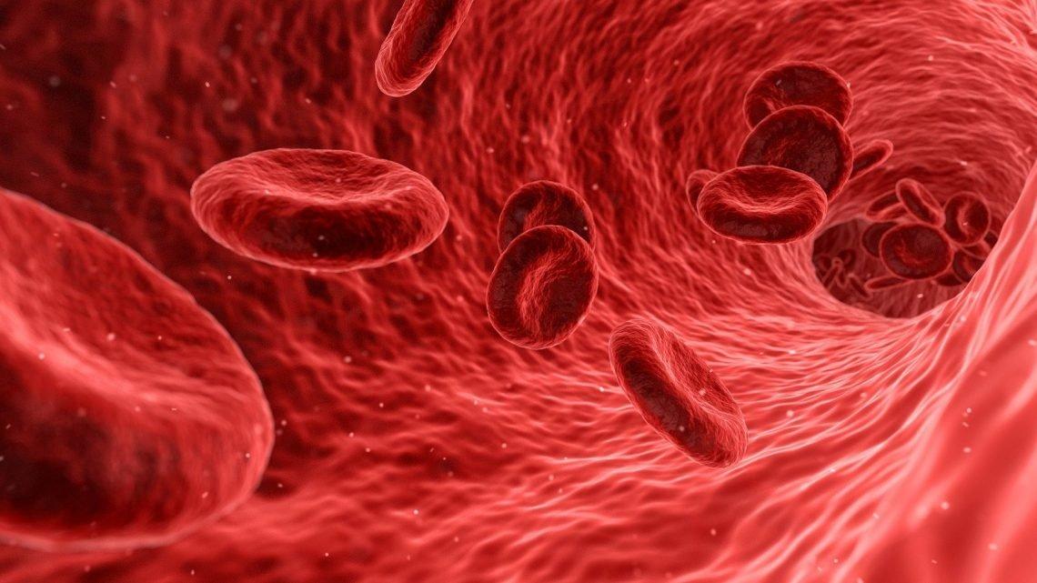 Krampfadern unwahrscheinlich zu entwickeln, in Blutgerinnseln