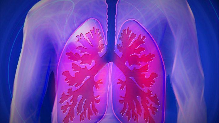 Der Forscher entwickelt mit fortgeschrittenem Lungenkrebs Vorhersage-Modell