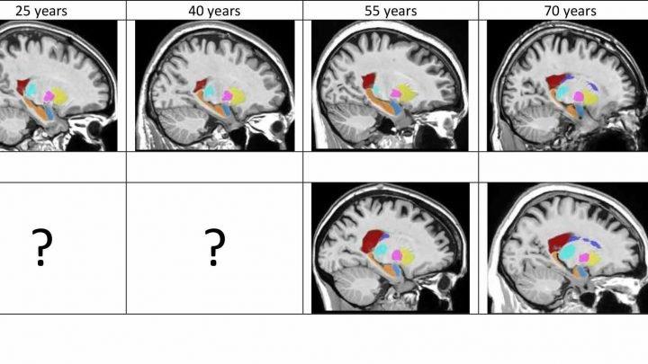 Wie funktioniert das Gehirn verändert sich im Laufe der Alzheimer-Erkrankung?