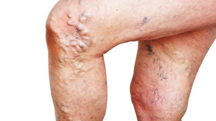 Forschung zu Krampfadern: Laser-Behandlungen haben alarmierend hohe Rückfallquote!