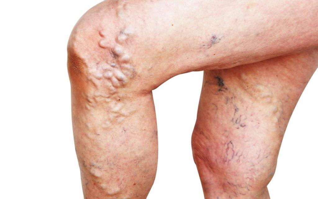 Forschung zu Krampfadern: Laser-Behandlung führte zu alarmierend hoher Rückfallquote!