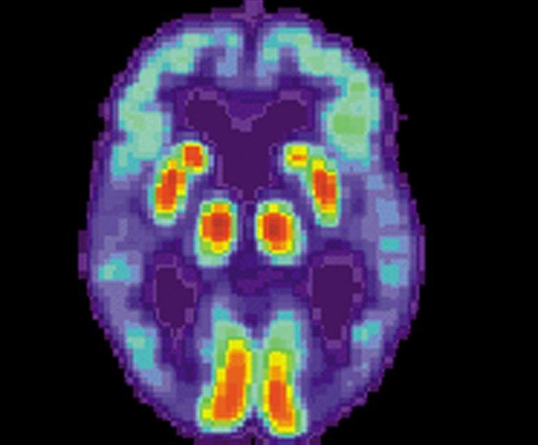 Forscher entdecken zwei, seltene Gene, die mit Alzheimer-Krankheit