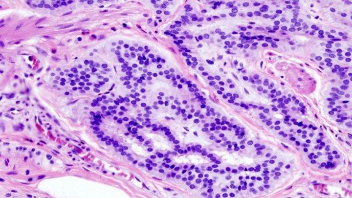 Darmkrebs bei Patienten mit frühen Ausbruch unterscheidet sich von der, die bei älteren Patienten