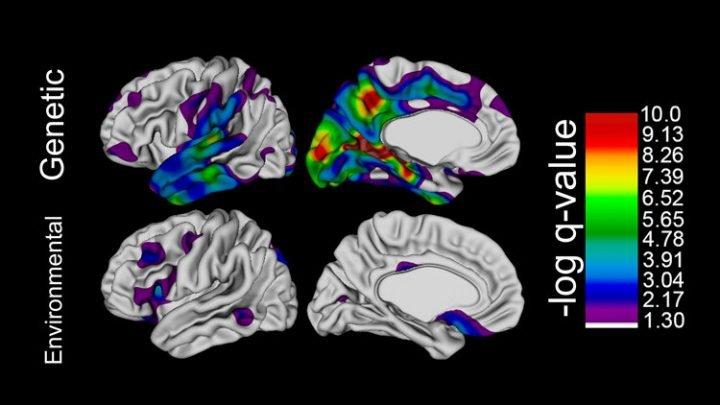 Genetische Faktoren beeinflussen das menschliche Gehirn expansion