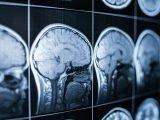 Potenziell tödliche und Speicher-killing-Effekt von opioid-Missbrauch untersucht
