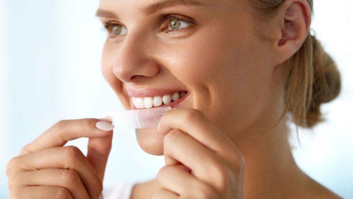Bleaching-Produkte schaden den Zähnen