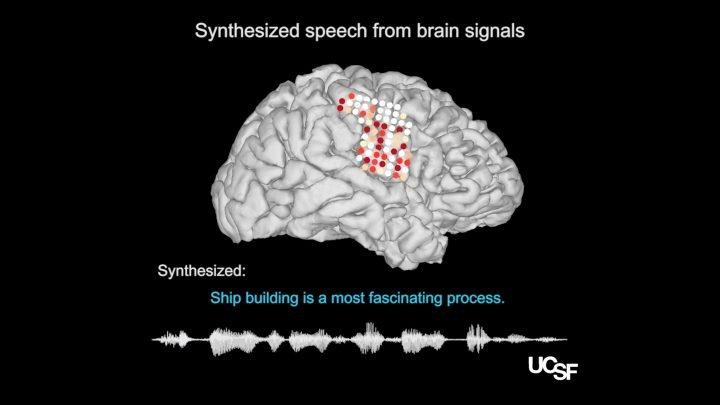 Synthetische Sprache generiert, aus Gehirn-Aufnahmen