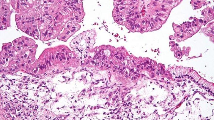 Eierstock-Krebs-Patienten undertested für Mutationen, konnte die klinische Versorgung