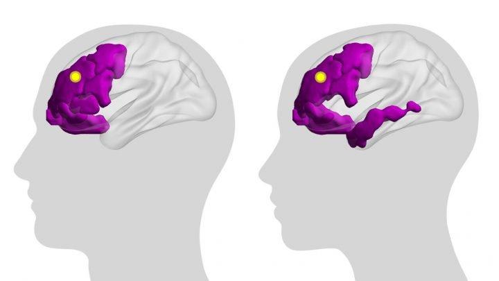 Studie erhellt das Gehirn Innenleben