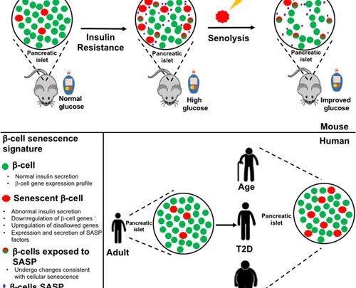 Forscher Wiederherstellung der beta-Zell-Funktion durch löschen von alten Zellen