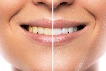 Studie: Keine weißen Zähne durch Zahnpasta aus Aktivkohle