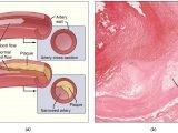 Blase Droge verbunden mit Atherosclerose in den Mäusen