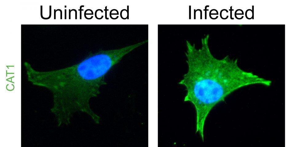 Forscher lernen, gefährliche Gehirn-Parasiten 'Aufträge', um sich das Abendessen