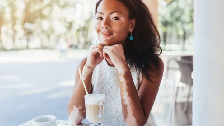 Hautpflege-Tipps für Menschen mit Vitiligo
