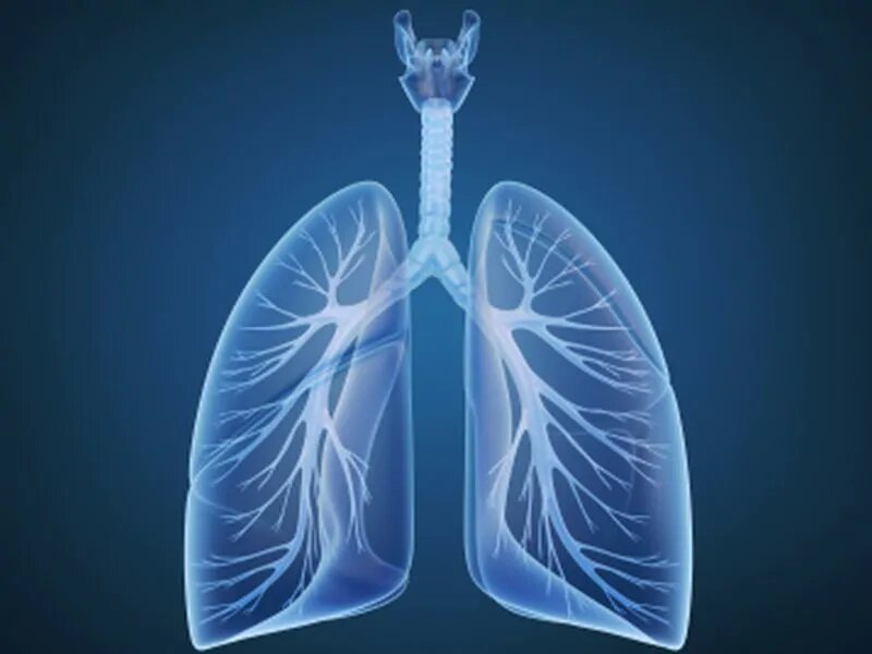 Das hinzufügen von bevacizumab verbessert überlebensrate bei nicht-kleinzelligem Lungenkrebs