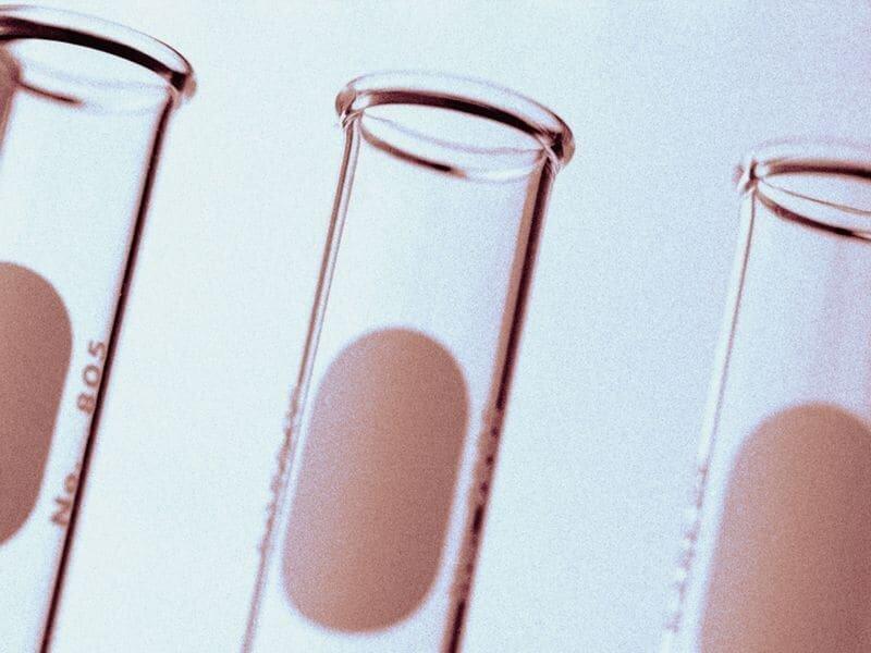Vitamin D, östradiol-Mangel haben synergistische Wirkung auf MetS
