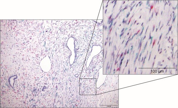 Wissenschaftler haben festgestellt, dass die Anwesenheit von Krebs-unterdrückende Zellen im Pankreas-Krebs