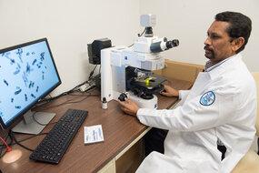 Studie: Biomarker im Urin kann bieten die nicht-invasive Erkennung von Prostata-Krebs