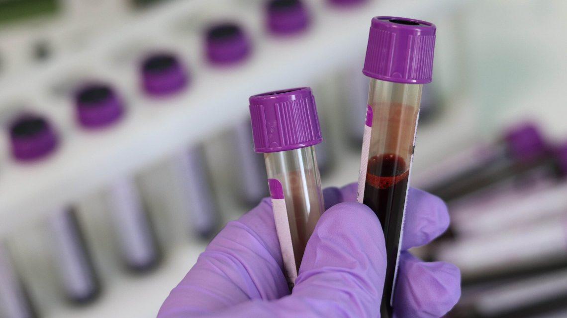 Einfacher Bluttest könnte besser Vorhersagen, sowohl für Nieren-und Herz-Kreislauf-Risiko