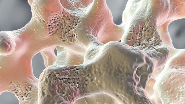 Neuer Osteoporose-Antikörper – jetzt doch!