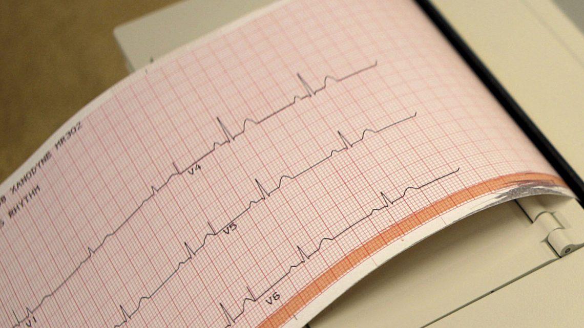 Neue, alte Medikamente können bieten neue Wege zur Bekämpfung von Herzerkrankungen