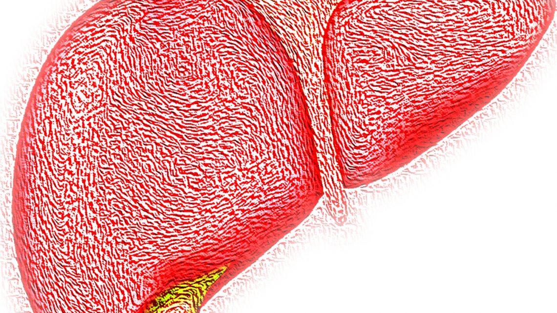Langlebigkeit protein SIRT6 schützt auch gegen Fettleber und Fettleber