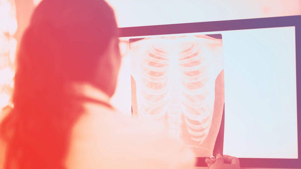 4 Behandlung Von Lungenkrebs Optionen, Erklärten Die Ärzte