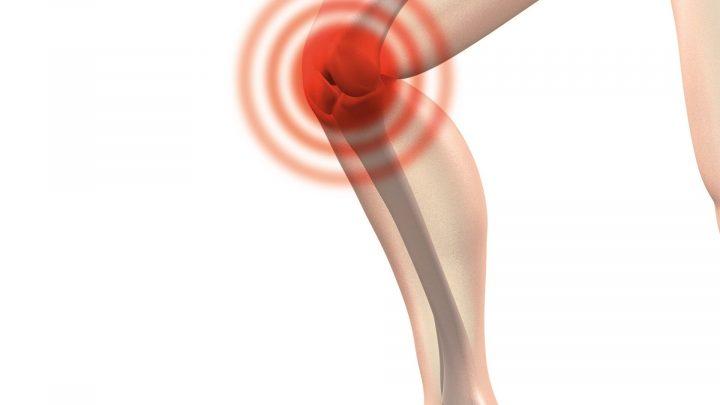 Knie-Ersatz-timing ist alles falsch für die meisten Patienten
