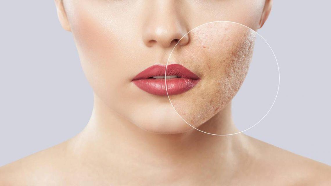Mitesser entfernen – so wird Ihre Haut wieder porenrein