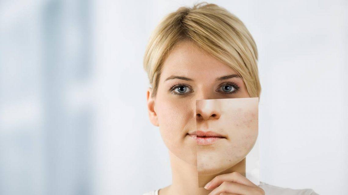 Was hilft gegen Pickel? Mit diesen Tipps verbessern Sie Ihr Hautbild