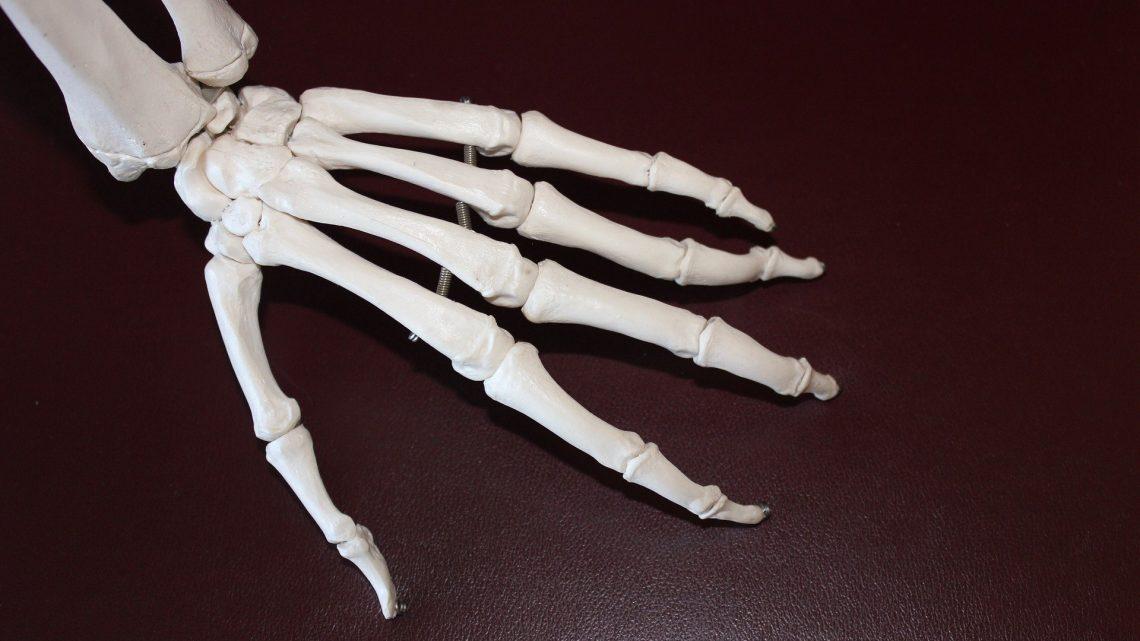 FDA genehmigt neue Gesamt-Handgelenk-Ersatz-Gerät zur Behandlung von schmerzhaften arthritis