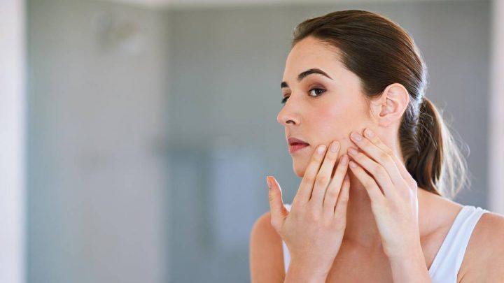 Pickel unter der Haut: So werden Sie die lästigen Knubbel los