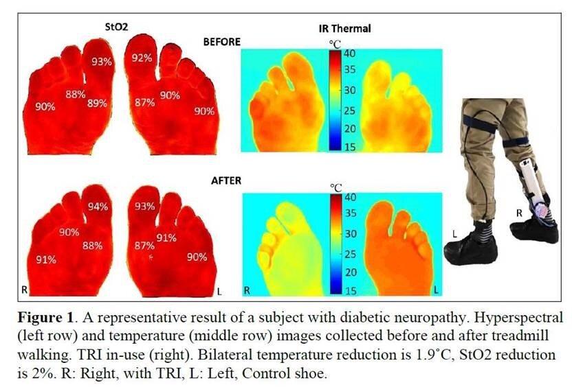 Eine 'sole' mate zu verhindern, diabetischen fußulzera