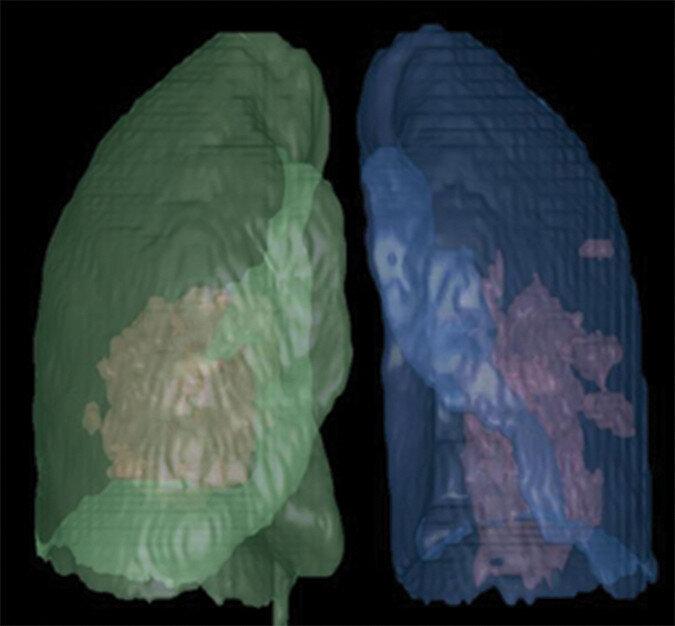 CT von COVID-19 versus CT der influenza-virus-Lungenentzündung