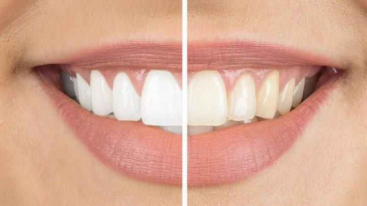 Mit diesen Bleaching-Methoden hellen Sie Ihre Zähne wieder auf